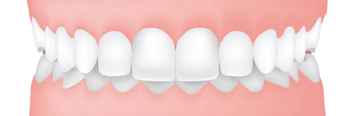 5 of the Most Common Types of Malocclusion