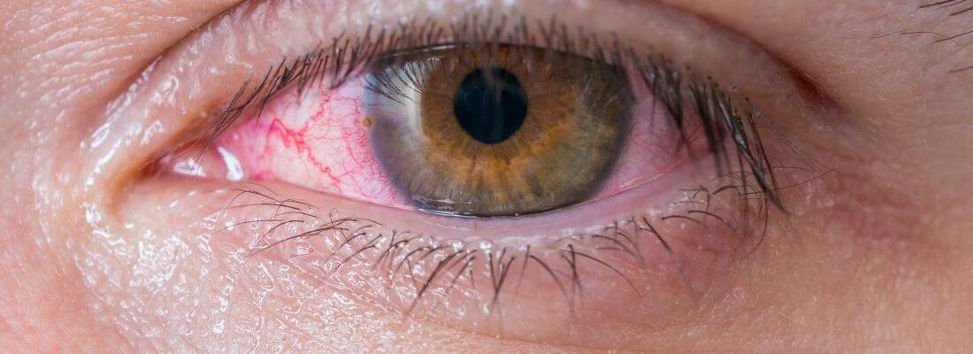 What Causes Pink Eye?